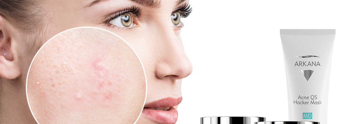 Kozmetika protiv akni
